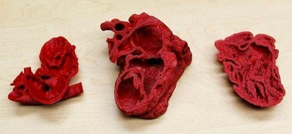 Le coeur d'un bébé imprimé en 3D !
