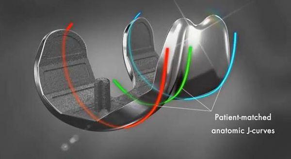 Quand impression 3D et médecine se font du genou !