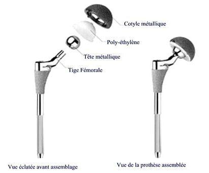 les différents parties d'un implant de hanche