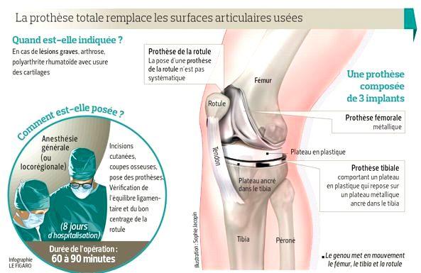 les pièces qui composent un implant de genou