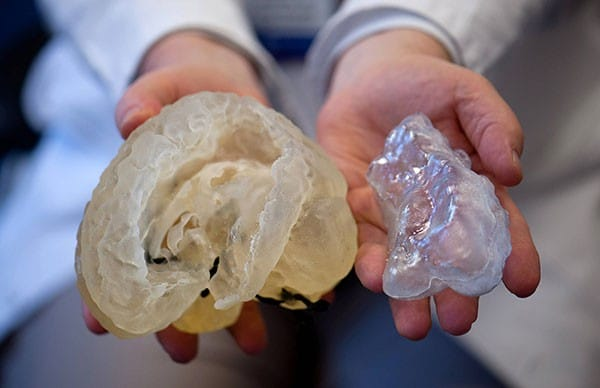 Un hôpital américain soigne un enfant en reproduisant son cerveau par impression 3D