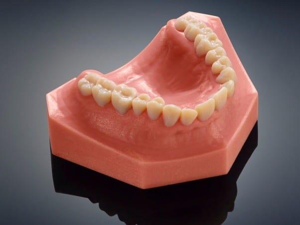 une imprimante 3d sp cialis e dans la dentisterie. Black Bedroom Furniture Sets. Home Design Ideas