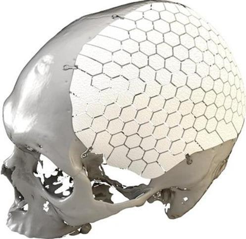 Le suédois Oss Design reçoit l'autorisation de la FDA pour ses implants crâniens imprimés en 3D
