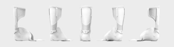 plus medica OT et EOS réalisent des prothèses orthopédiques sur-mesure imprimées en 3D