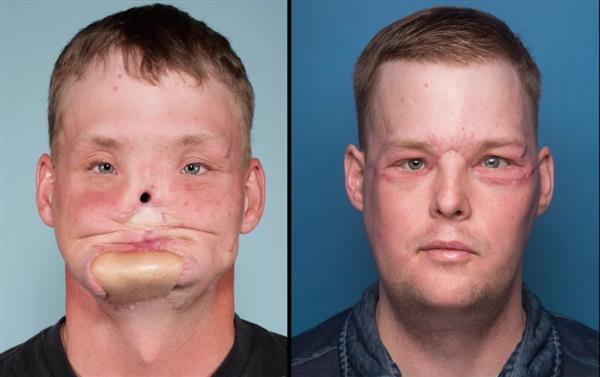 Mayo Clinic utilise l'impression 3D pour reconstruire le visage d'Andrew Sandness