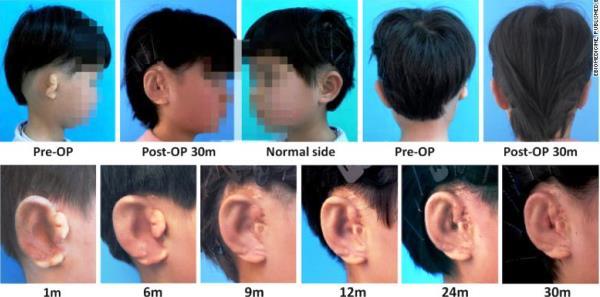 oreille fabriqué par impression 3D