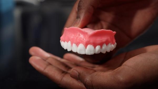 Des prothèses dentaires imprimées en 3D capables de libérer des médicaments antifongiques
