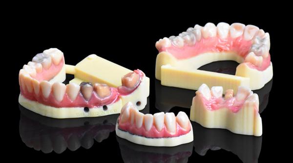 Des modèles dentaires encore plus réalistes grâce l'impression 3D couleur de Stratasys
