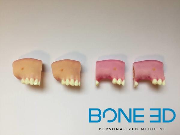 Le simulateur de chirurgie guidée implantaire mandibulaire de face
