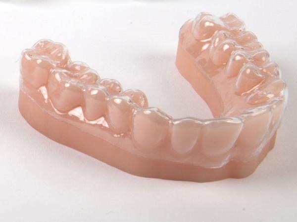 Plus de 2000 gouttières par jour grâce au nouveau système d'impression 3D dentaire de Prodways