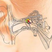 La première greffe mondiale d'os imprimés en 3D de l'oreille moyenne
