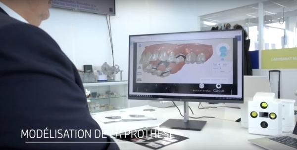 modélisation d'un appareil dentaire