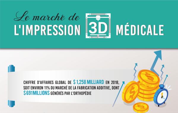 Infographie : le marché de l'impression 3D médicale