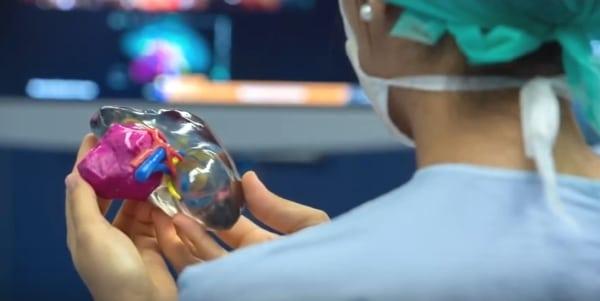 maquettes de reins imprimés en 3D