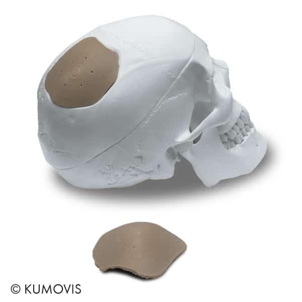 Implant crânien produit sur l'imprimante 3D Kumovis R1