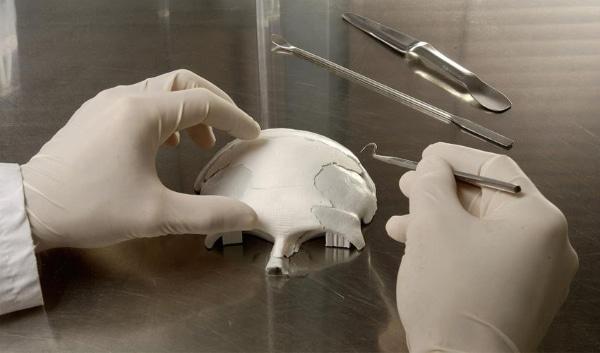 Implant crânien imprimé en céramique