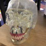Bone 3D : Le spécialiste français de l'impression 3D médicale lève 1,4 million d'euros