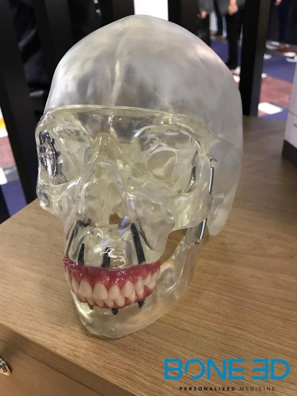 crâne imprimé par Bone 3D