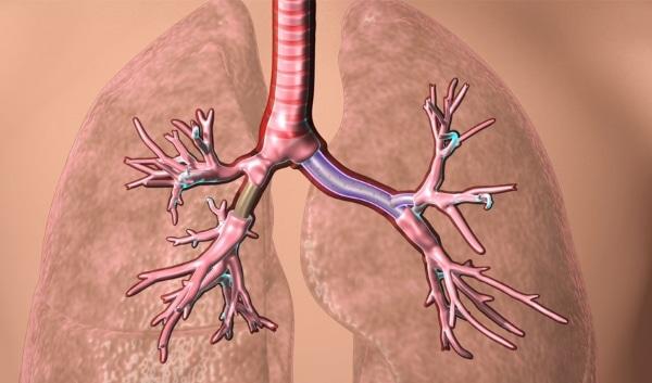 prothèse de bronchite conçu en partie par impression 3D
