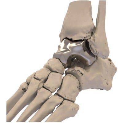La FDA donne son autorisation pour le premier implant de talus imprimé en 3D