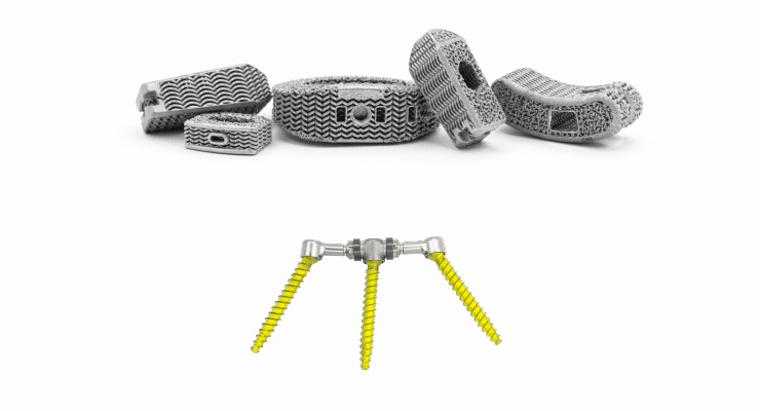Nexus Spine lance de nouveaux implants spinaux imprimés en 3D