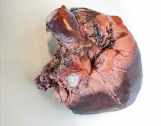 Des modèles anatomiques hyper réalistes nés de l'impression 3D couleur de Mimaki