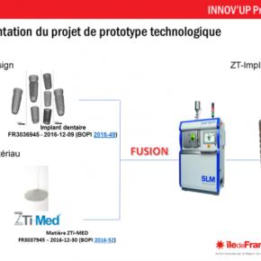 Le français Z3DLAB annonce un implant dentaire révolutionnaire imprimé en 3D  !